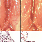 Challenges in translating vascular tissue engineering to the pediatric clinic